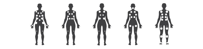 Discovery massage points