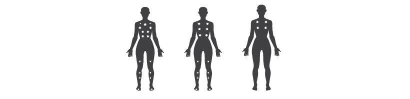 Mars massage points